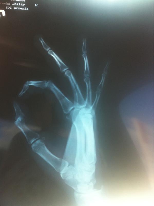 Radiografía de la Mano de CM Punk (6.12.11) / Twitter.com/CMPunk